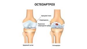 Лигаментоз коленного сустава: признаки и причины развития болезни, диагностические методики для определения патологии и способы терапии