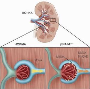 Подагрическая нефропатия: этиология заболевания, типы и механизмы патологии, лекарственные средства и методы терапии