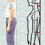 Как определить наличие и степень сколиоза: причины искривления позвоночника, методы своевременной диагностики на разных стадиях и профилактика