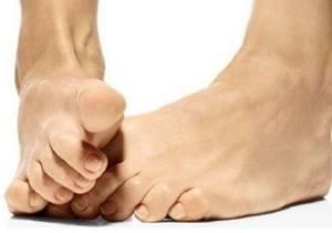 К какому врачу обратиться с косточкой на большом пальце ноги: проявление заболевания и риски осложнений, способы диагностики и лечения оперативным, медикаментозным и физиотерапевтическим методом