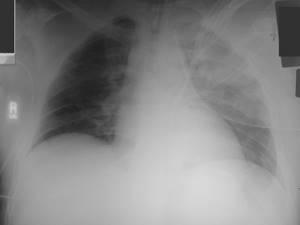 Перелом грудины: классификация и основные симптомы травмы, методы диагностики и рекомендации по оказанию доврачебной помощи, способы лечения и возможные осложнения