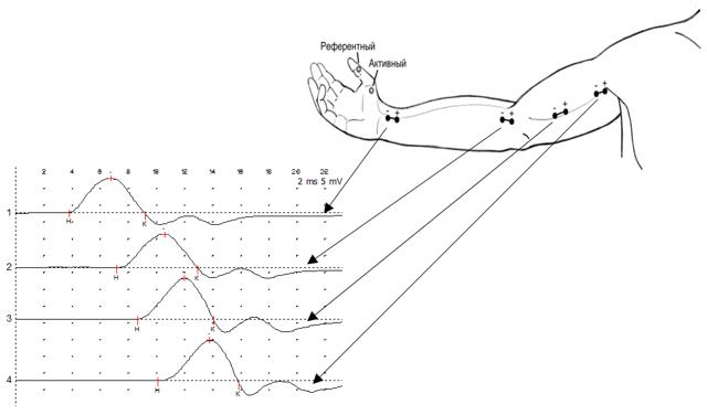 ЭНМГ: в чем суть методики, описание процедуры, показания и противопоказания к проведению электронейромиографии, виды и этапы исследования, расшифорвка результатов