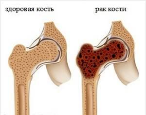 Появление саркомы кости: симптомы, причины патологии, стадии развития заболевания, лечение, прогнозы докторов