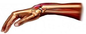 Перелом лучевой кости: виды травм, клинические симптомы и правила оказания первой помощи, способы лечения и осложнения, сроки восстановления и реабилитационный период