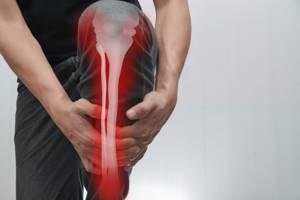 Остеоартроз коленного сустава: лечебные мероприятия в зависимости от стадии болезни, значение гимнастики и опасности задержки в терапии