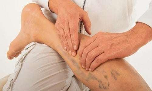 Онемение в области ноги при грыже позвоночника: особенности симптома, механизм развития работы, диагностика и лечение