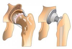 Эндопротезирование шейки бедра: показания для хирургического вмешательства и восстановление после операции, виды протезов и проведение операции, этапы реабилитации и стоимость