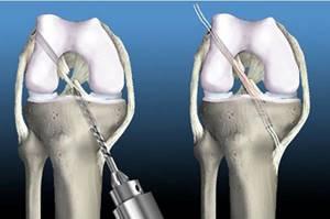 Пластика ПКС: виды операции и принцип выполнения, показания и противопоказания к хирургическому вмешательству, реабилитация после процедуры