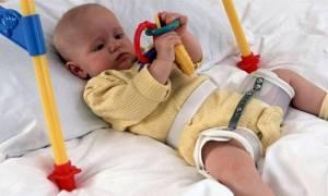 Врожденный вывих бедра: причины, симптомы, хирургическое вмешательство, реабилитация после операции, возможные осложнения, рекомендации хирургов