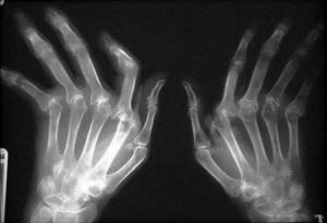 Ревматоидный артрит пальцев рук: причины и признаки заболевания, виды деформаций, тактика и методы лечения