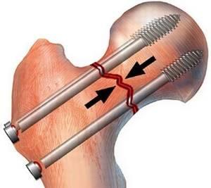 Скелетное вытяжение при переломе: виды процедуры, оценка методики и техника ее выполнения, показания и противопоказания к назначению, этапы и длительность терапии