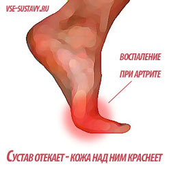 Артрит пальцев ног: причины и признаки болезни, разновидности и способы диагностики, медикаментозная и народная терапия, правила питания