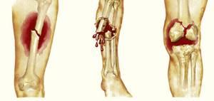 Перелом большеберцовой кости: основные причины и виды травмы, характерные симптомы и диагностика, первая помощь и методы лечения, реабилитационные мероприятия