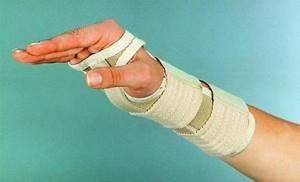 Тендовагинит лучезапястного сустава: что это такое, причины поражения, особенности лечения и профилактики
