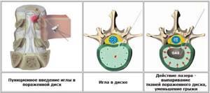 Лечение межпозвоночной грыжи лазером: описание и принцип действия метода, виды лазерного воздействия и эффективность, противопоказания и побочные действия