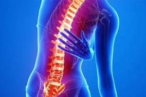 Дорсопатия: причины развития патологии, ее разновидности и стадии течения, характерные симптомы и диагностика, современные и народные методы лечения, меры профилактики