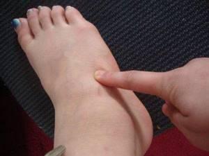 Боль в стопе при ходьбе: причины появления болевых ощущений, диагностика заболевания и лечение