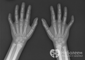 Брахидактилия: типы и причины развития патологии, клинические симптомы и диагностика, консервативные и хирургические способы лечения, возможные осложнения и прогноз