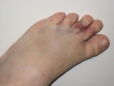 Ушиб пальца на ноге: степень и тяжесть, симптомы, первая помощь в домашних условиях и методы лечения