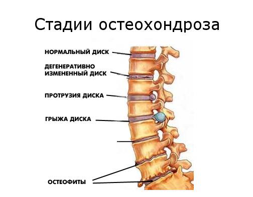 Почему болят ноги от бедра до стопы: причины и признаки заболевания, когда стоит обратиться к врачу, диагностика и лечение