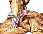 Порванные связки на ноге: симптомы и признаки, диагностика и лечебные методы, классификация травм