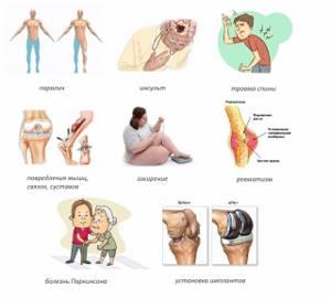 Аппарат Артромот для разработки сустава: когда назначается, виды, правила применения, показания и противопоказания к использованию artromot, отзывы пациентов