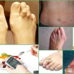 Искривление пальцев на ногах: ортопедические и медикаментозные методы устранения деформации, причины и признаки развития патологии, показания для операции