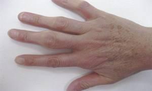 Серопозитивный ревматоидный артрит: основное понятие и как его распознать, медикаментозная и хурургическая терапия, причины и профилактика недуга