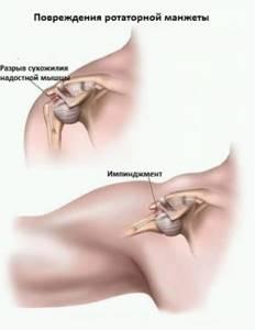 Разрыв вращательной манжеты плечевого сустава: медикаментозная терапия и лечебная физкультура, хирургическое вмешательство и реабилитация