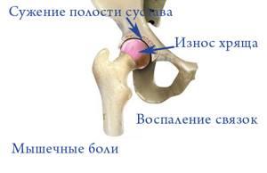 Боль в тазобедренном суставе, отдающая в пах: причины и симптомы патологии, к какому врачу обратиться, методы диагностики и лечение с помощью комплексной терапии