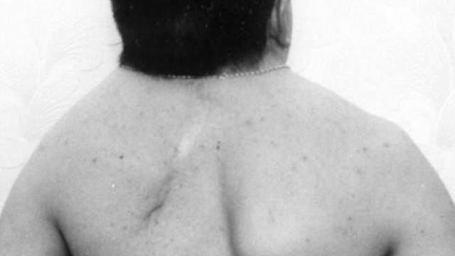Синдром Клиппеля-Фейля: особенность патологии и причины ее развития, характерные симптомы и диагностика, методы лечения и возможные осложнения, прогноз для жизни