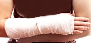 Перелом предплечья: виды и особенности травмы, клинические симптомы и правила оказания первой помощи, методы лечения и сроки восстановления, реабилитация и последствия