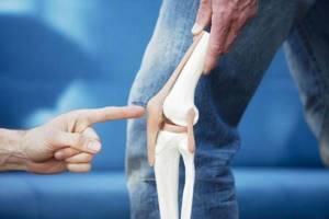 Пателлофеморальный артроз: причины патологии, стадии и симптомы болезни, лечение препаратами и физиопроцедуры, рецепты народной медицины и показания к операции