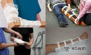 Перелом пяточной кости: классификация и симптомы травмы, диагностика и правила оказания первой помощи, сроки иммобилизации и методы лечения, реабилитационный период