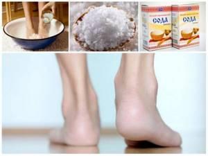 Народные рецепты от пяточной шпоры: эффективные ванночки, мази и компрессы, рецепты приготовления и схема лечения