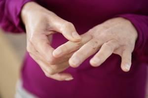 Перелом большого пальца руки: классификация повреждения, отличительные признаки и диагностика, консервативные методы лечения и операция, реабилитационные мероприятия