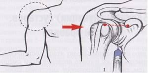 Воспаление связок плечевого сустава: причины патологии, клинические симпотомы при различных заболеваниях, современные и народные методы лечения, меры профилактики