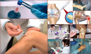Лечение суставов с помощью стволовых клеток: показания и противопоказания, подготовка, порядок процедуры и необходимое время на терапию, отзывы пациентов