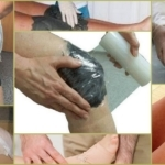Лечение суставов глиной: полезные свойства и противопоказания к применению, разновидности и правила приготовления, рецепты использования