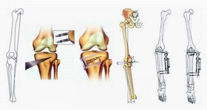 Варусная деформация нижних конечностей у детей: причины и симптомы развития патологии, диагностика, консервативное, хирургическое и физиотерапевтическое лечение