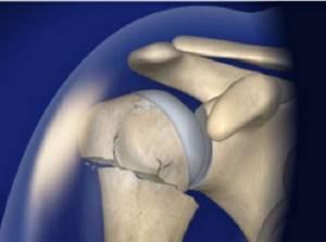 Перелом плечевой кости: классификация травм, симптомы, первая помощь пострадавшему, методы диагностики и принципы лечения, реабилитационные мероприятия и профилактика