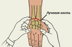Перелом голени: причины и классификация повреждения, специфические симптомы и методы диагностики, правила оказания первой помощи и особенности лечения, последствия травмы