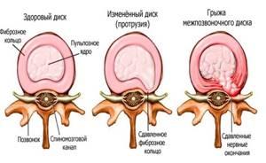 Почему возникает боль в пояснице при наклоне вперед: самые частые причины, диагностика и лечение