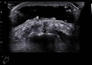 УЗИ голеностопного сустава: преимущества исследования, показания и противопоказания к проведению, ход процедуры и расшифровка результатов, стоимость диагностики