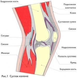Воспаление связок коленного сустава: причины и характерные симптомы патологии, лечение препаратами и показания к операции, рецепты народной медицины и реабилитация