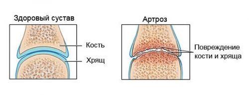 Правила лечения суставов с помощью касторового масла: состав и полезные свой касторки, рецепты народных средств на ее основе, способы их применения и противопоказания