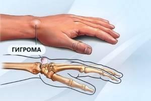 Шишки на пальцах рук: что это может быть, причины появления и эффективные народные методы и медикаменты, разновидности патологии
