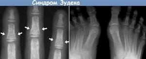 Синдром Зудека: причины и факторы риска, возможные осложнения и последствия, описание заболевания и методы лечения