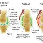 Болят колени после родов: первая помощь, главные причины, медикаментозные препараты для лечения, народные рецепты и рекомендации специалистов
