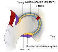 Синовит тазобедренного сустава: что это за заболевание, описание патологии и симптоматика, медикаментозные средства и физиотерапевтические процедуры